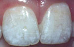 Dental Fluorosis photos - 15356 Bytes