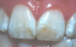 Dental Fluorosis photos